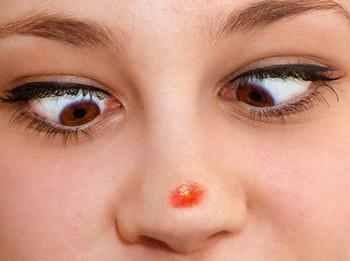 К чему появляются прыщики на носу?
